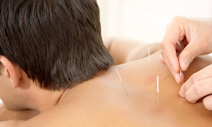 Awaken Therapeutics - Uptown: $79 for Three Acupuncture Treatments with Reconnective Therapy at Awaken Therapeutics ($285 Value)