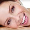 85% Off Teeth Whitening from BleachBright