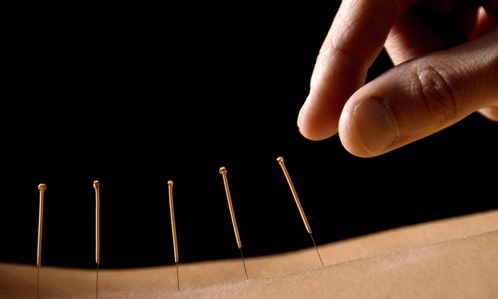 Acupuncture Wellness Center - Harrisburg: One or Two Acupuncture Sessions with Mini Massages at Acupuncture Wellness Center (Up to 53% Off)