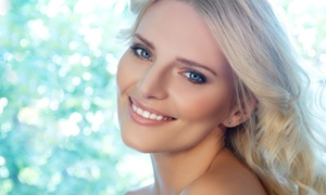 Esthetics by Lisa: Three or Five Dermaplane Treatments with Diamond Microdermabrasion at Esthetics by Lisa (Up to 70% Off)