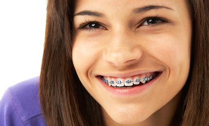 image for Fastbraces For Upper and Lower Arches with Retainer at Circus House Dental and Implant Centre (63% Off)