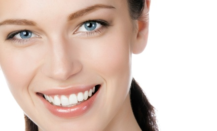 In-Office Teeth-Whitening Treatment with Optional Dental Exam at Gotta Smile (Up to 71% Off)