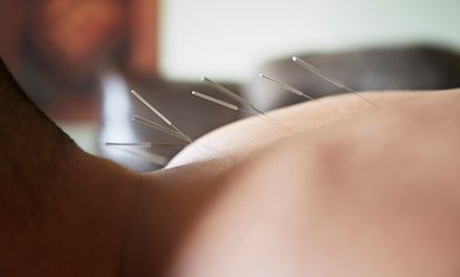 Initial Consultation with One <strong>Acupuncture</strong> Treatment at Chinese <strong>Acupuncture</strong> and Herb Center
