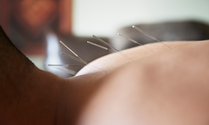 Joan Dedian at D'Arcy Wellness Center - Natick: One or Three Acupuncture Treatments with Consultation from Joan Dedian at D'Arcy Wellness Center (Up to 78% Off)