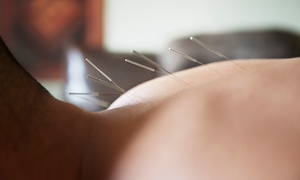 Wellspring Natural Health: Acupuncture with Consultation and Optional Cupping and Follow-Up at Wellspring Natural Health (Up to 64% Off)