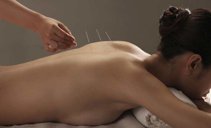 $19 for Acupuncture and Massage at Ping's Acupuncture & Weight Loss Clinic, CBD (Up to $135 Value)