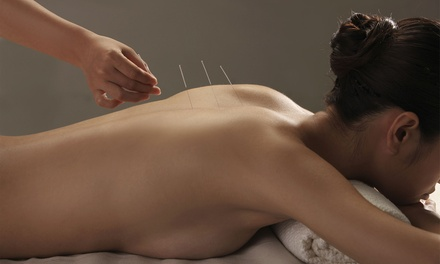 $59 for Initial Consultation with Two 60-Minute Acupuncture Sessions at Wolf Moon ($180 Value)