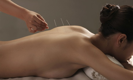 Acupuncture Treatments at Points of Light Acupuncture & Massage (Up to 82% Off). Three Options. e07babec-245c-4706-8fe2-b0a766a0a14c