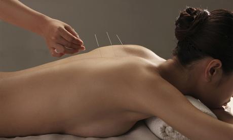 6 o 12 sesiones de acupuntura desde 39,95 € en Centro de Osteopatía Velázquez Oferta en Groupon