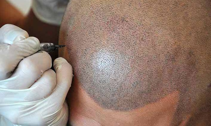 Micro Scalp Clinic - Micro Scalp Clinic: $270 for $900 Worth of Hair Restoration — Micro Scalp Clinic