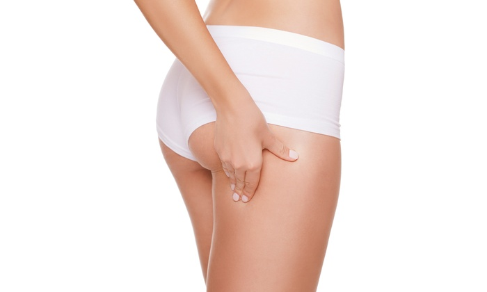 DC Medical Spa - Spring Branch West: One, Three, or Six Dermocell Cellulite-Reduction Treatments at DC Medical Spa (Up to 67% Off)