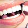 53% Off Dental-Implant Package at LA Dental Clinic