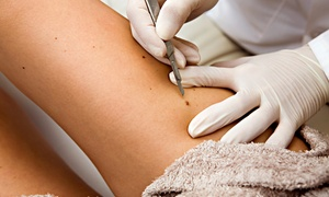 Georgia Aesthetic Med Spa: Removal for One, Two, or Three Skin Tags, Moles, or Age Spots at Georgia Aesthetic Med Spa (Up to 68% Off)