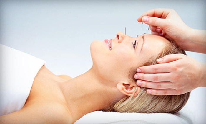 HealthPoint Community Acupuncture - Buckingham: One or Three Acupuncture Sessions or a Month of Unlimited Sessions at HealthPoint Community Acupuncture (Up to 70% Off)