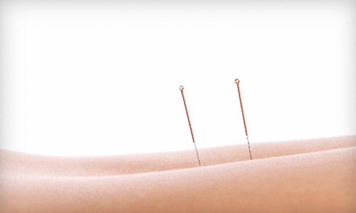 Acupuncture Wellness - Birmingham: One or Three 60-Minute Acupuncture Treatments at Acupuncture Wellness (Up to 67% Off)
