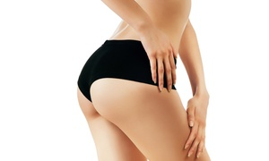LipoLaser of West Chester, Inc.: Three or Six LipoLaser Sessions at LipoLaser of West Chester, Inc. (Up to 77% Off)