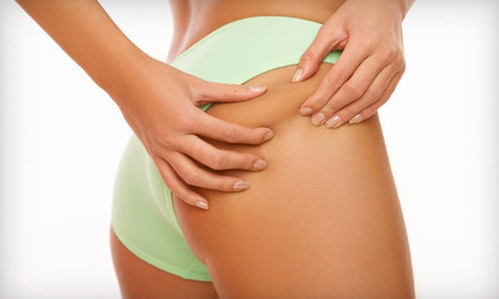 BodySculptMD - Tigard Neighborhood Area 4: $199 for Three VelaShape Body-Sculpting Treatments at BodySculptMD ($675 Value)