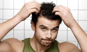 Vinci Hair Clinic: Paga 69,90 € por un descuento de 2.100 € en un trasplante capilar con técnica FUE en Vinci Hair Clinic