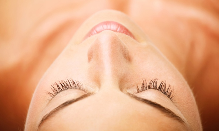 Glo Medspa - Glo Medspa: $184 for The Perfect Peel at Glo Medspa ($300 Value)