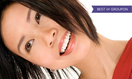 Zoom! Teeth Whitening with Optional Dental Exam, Cleaning, and X-Rays at Montgomery Greene Dental (Up to 82% Off)