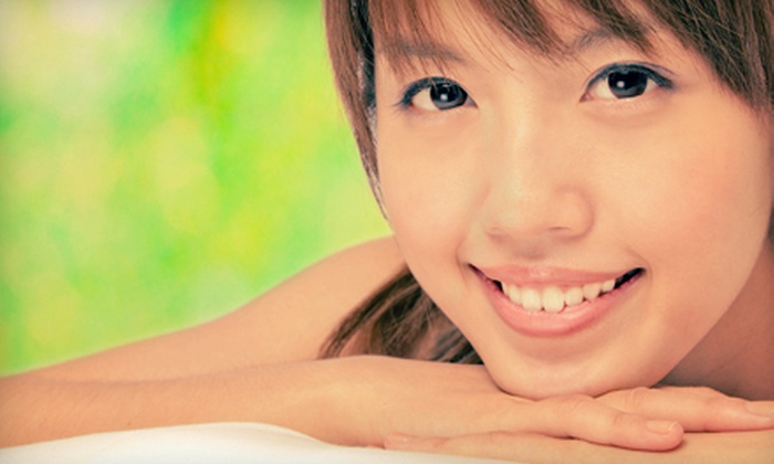 Rejuvenate Medical Spa - Multiple Locations: Microdermabrasion with Option of Gentle Facial Peel at Rejuvenate Medical Spa (Up to 59% Off)
