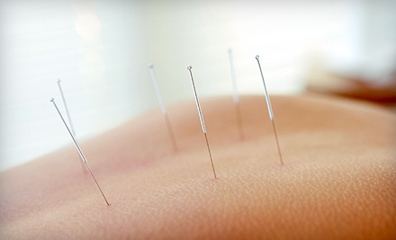 One, Three, or Six Acupuncture Treatments at Affordable Acupuncture Clinic (Up to 61% Off)