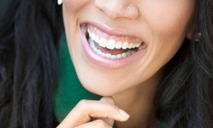 Aharon & Associates - Multiple Locations: $29 for a New-Patient Dental Package with Exam, X-rays, and Teeth Cleaning at Aharon & Associates ($248 Value)
