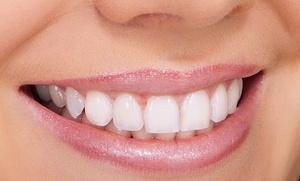 Limpieza dental con pulido, fluorización y diagnóstico por 12 €