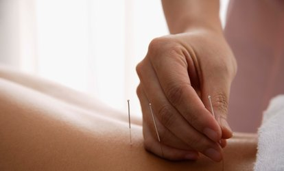 image for One or Two <strong>Acupuncture</strong> Treatments at Modern Point <strong>Acupuncture</strong> (Up to 71% Off)