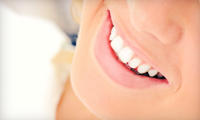 Icon Dental - Downtown San Francisco-Union Square: $1,999 for a Dental-Implant Package with Implant, Abutment, Crown, and X-Rays at Icon Dental ($5,337 Value)