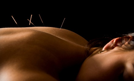 Acupuncture Packages from Dustin Siena, L.AC. (Up to 85% Off). Two Options Available.