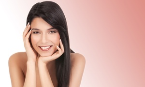 NoVa Medical Skin Care: One or Two Laser Acne and Acne Scar Treatments at NoVa Medical Skin Care (Up to 60% Off)