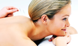 Four Seasons Acupuncture: One, Two, or Three Acupuncture Sessions at Four Seasons Acupuncture (Up to 58% Off)