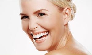 """Smilestore: 45 Min. kosmetisches Zahn-Bleaching """"Intensiv"""", opt. mit Pflege-Paket, bei Smilestore (bis zu 40% sparen*)"""