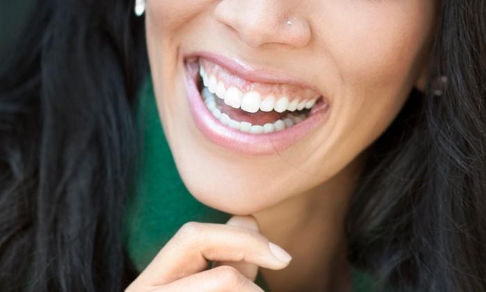 Smile Makers Dental - Totem Park: Dental Exam, Venus Teeth Whitening, or Both at Smile Makers Dental (Up to 65% Off)