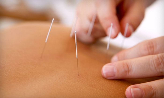 Shiloh Chiropractic - Shiloh: One or Two Acupuncture Treatments with a Consultation and Graphic Examination at Shiloh Chiropractic (Up to 72% Off)