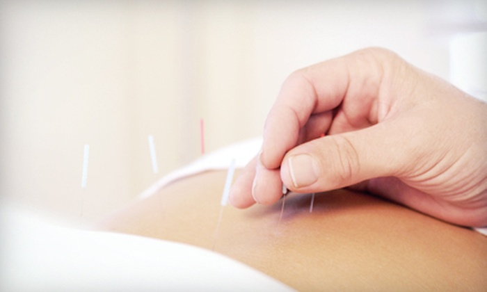 Holistic Wellness & Acupuncture Center - Fairfax: One or Two Acupuncture Treatments with Consultation at Holistic Wellness & Acupuncture Center (Up to 59% Off)