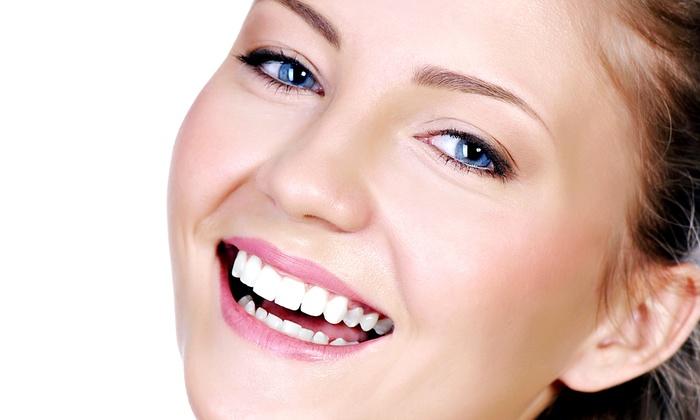 MiaSmiles - Upland: One or Three Gel Teeth-Whitening Treatments at MiaSmiles (Up to 55% Off)