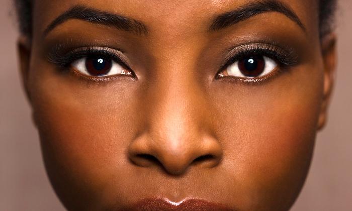 Image Care Electrolysis & Advanced Skin Care - Inman Square: Electrolysis, Microdermabrasion, or Customized Facial at Image Care Electrolysis & Advanced Skin Care (53% Off)