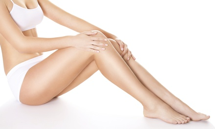 Two or Three Spider Vein and Sclerotherapy Treatments from Inga Friedman (Up to 67% Off)