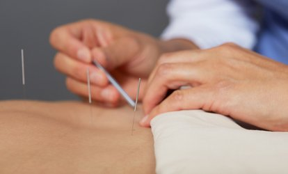 image for 30-Minute Acupuncture with Optional 30-Minute Massage  (Up to 55% Off)