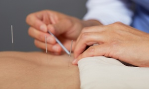Affinity Acupuncture & Rolfing, Dr. Christie: Acupuncture Treatments with Consultation or Rolfing Session at Affinity Acupuncture & Rolfing (Up to 76% Off)