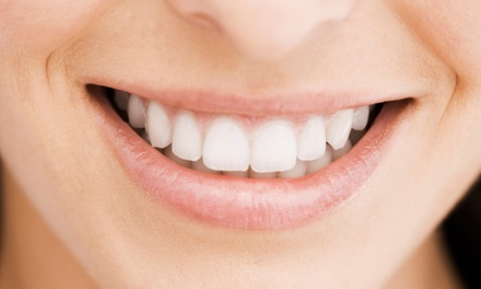 $129 for a One-Hour Professional Teeth-Whitening Treatment at Christine Wallisch DMD ($400 Value)