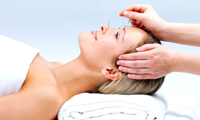 The Center for Natural Healing - Cape Coral: $42 for a 45-Minute Acupuncture Session at The Center for Natural Healing ($85 Value)