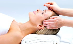 The Center for Natural Healing: $42 for a 45-Minute Acupuncture Session at The Center for Natural Healing ($85 Value)