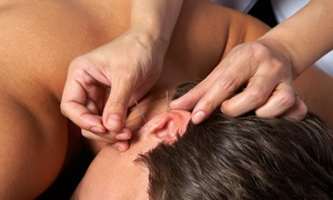Inner Phoenix Acupuncture, LLC: $19.99 for a One-Hour Acupuncture Session at Inner Phoenix Acupuncture, LLC ($45 Value)