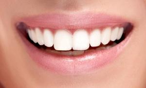 Implantes de titanio y corona de metal porcelana con limpieza bucal desde 389 € en Improdent