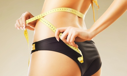 Four or Six i-lipo Weight-Loss Treatments at MS Slim (Up to 79% Off)