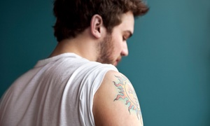 "Lasercare Tattoo Removal: Three Laser Tattoo-Removal Treatments for a 1.5""x1.5"" or 3""x3"" Tattoo at Lasercare Tattoo Removal (Up to 68% Off)"