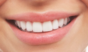 London Aesthetic Clinic LTD: Laser Teeth Whitening at London Aesthetic Clinic (84% Off)
